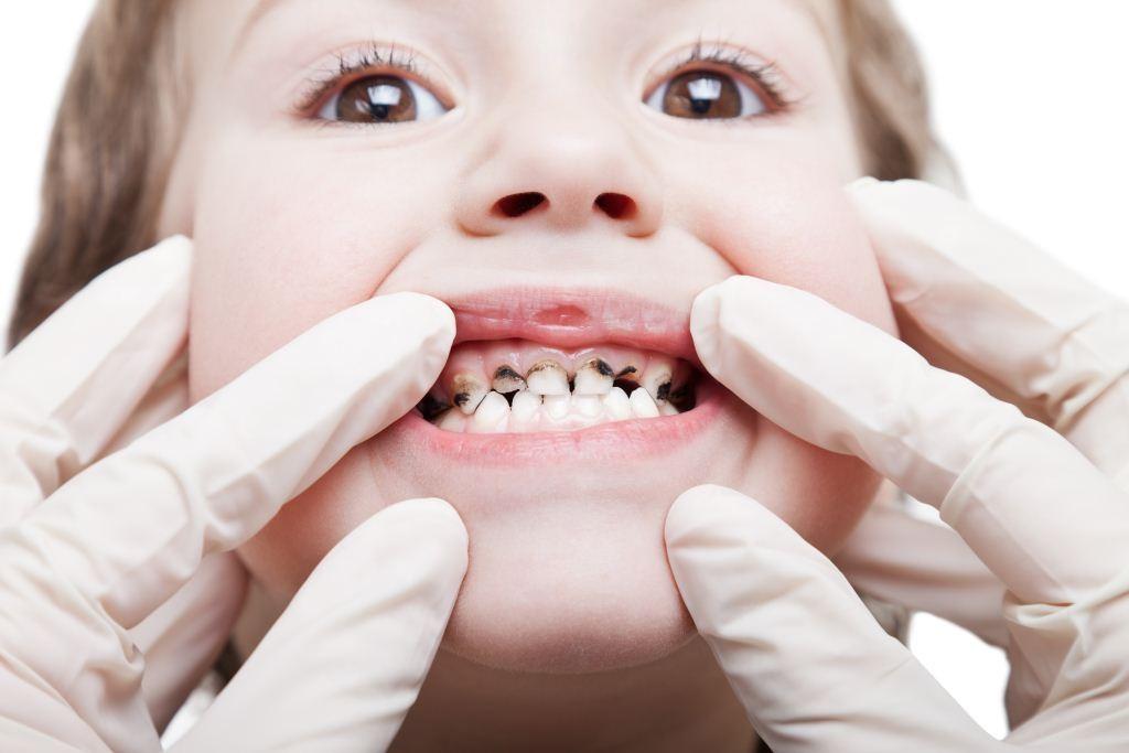 çocuklarda diş çürümesi, çocuklarda diş çürükleri, diş çürüğü oluşumu