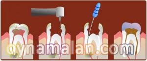 kanal tedavisi, Kanal tedavisi işlemi, Çürümüş veya hasarlı bir diş