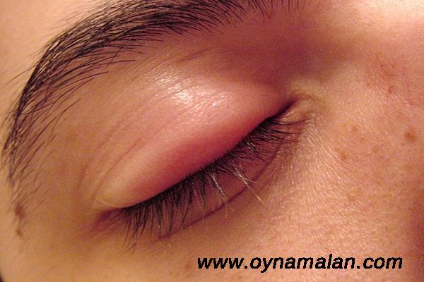 göz şişliğini geçirme, göz şişliği nasıl geçer, göz neden şişer