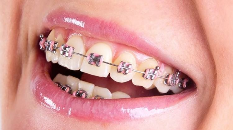 metal diş teli, görünmez diş teli, diş teli seçimi