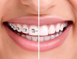 ortodonti nelere etki eder, ortodonti tedavisinin yararları, ortodontinin diş sağlığına etkisi