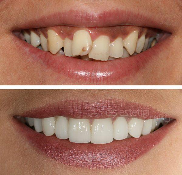 diş estetiği fiyatları ne kadar, diş estetiği yaptırma fiyatları