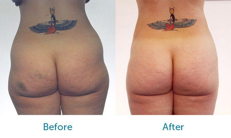 Liposuction uzmanları, Liposuction merkezleri, Liposuction merkezi uzmanları