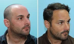 saç ekim merkezleri, en iyi saç ekim doktorları