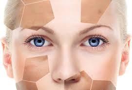 leke kremlerinin özellikleri, leke kremlerinin etkileri, leke kremi kullanımı