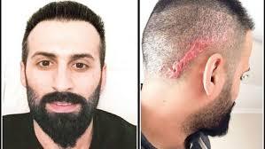 saç ekim ücretleri, saç ektirme ücretleri, 2019 saç ekimi maliyetleri