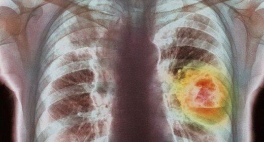akciğer kanseri tedavisi, alternatif tıp ile kanser tedavisi, akciğer alternatif tıp tedavisi yapımı