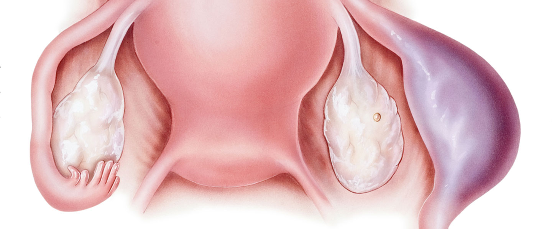 endometrial hiperplazi ne demek, endometrial hiperplazi belirtisi, endometrial hiperplazi kimlerde görülür