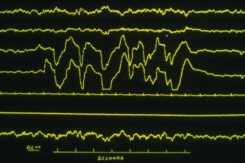 elektrodiagnostik testler nedir, elektrodiagnostik test ne demek, elektrodiagnostik testlerin kullanımı