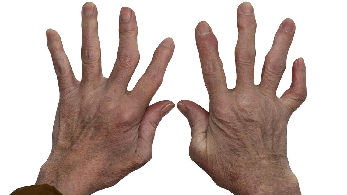 romatoid artrit tedavisi, romatoid artrit teşhisi, romatoid artrit ne demek